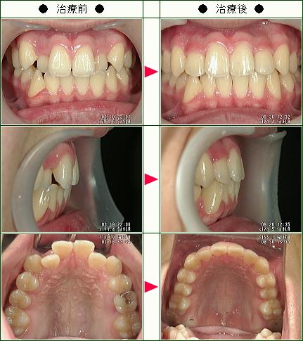 歯のデコボコ矯正症例(光永様 15歳 男性)