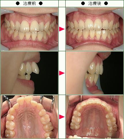 歯のデコボコ矯正症例(M.K様 25歳 女性)