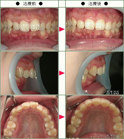 出っ歯矯正症例(M.K様 29歳 女性)
