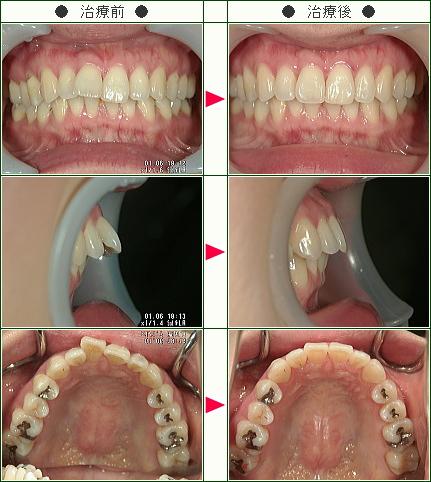 出っ歯矯正症例(M・K様 33歳 女性)