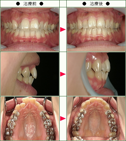 歯のデコボコ矯正症例(M・K様 35歳 女性)