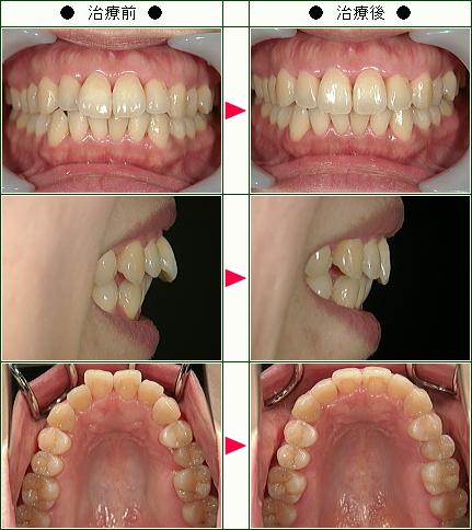 歯のデコボコ矯正症例(M.K様 40歳 女性)