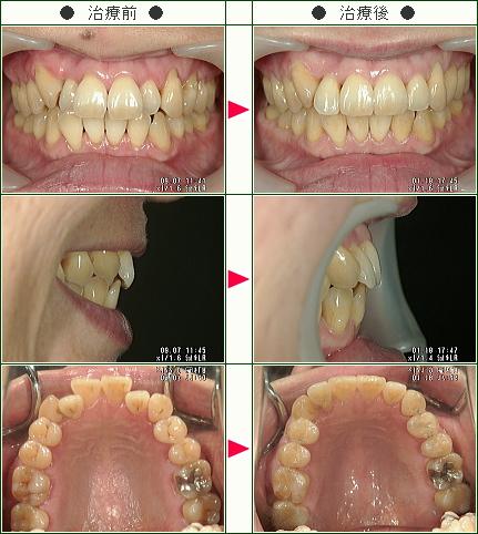 歯のデコボコ矯正症例(M・K様 48歳 女性)