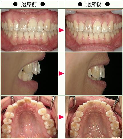 歯のデコボコ矯正症例(M.M様 31歳 女性)
