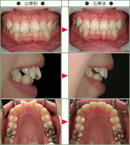 歯のデコボコ矯正症例(M.M様 35歳 女性)