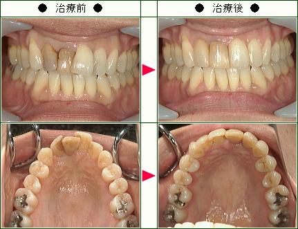 歯のデコボコ矯正症例(M.M様 46歳 女性)