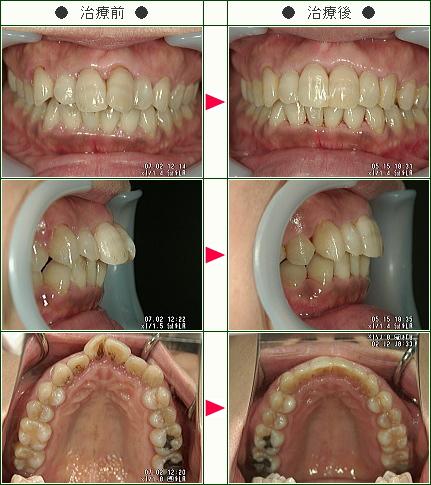 出っ歯矯正症例(M.M様 47歳 女性)