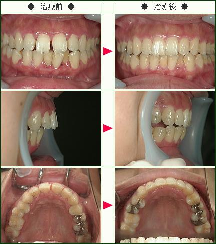 前歯のすきっ歯矯正症例(M.N様 25歳 女性)