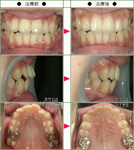 出っ歯矯正症例(M.O様 26歳 女性)