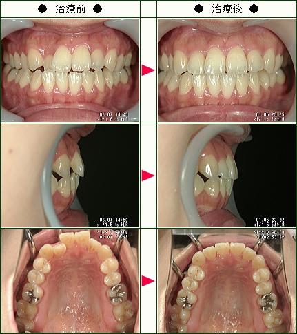 歯のデコボコ矯正症例(M.O様 30歳 女性)