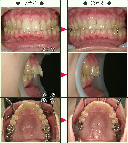 出っ歯矯正症例(M・O様 35歳 女性)