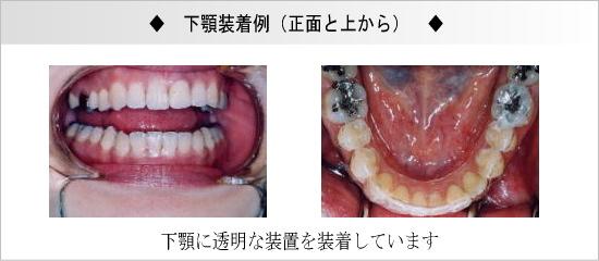下顎装着例(正面と上から)