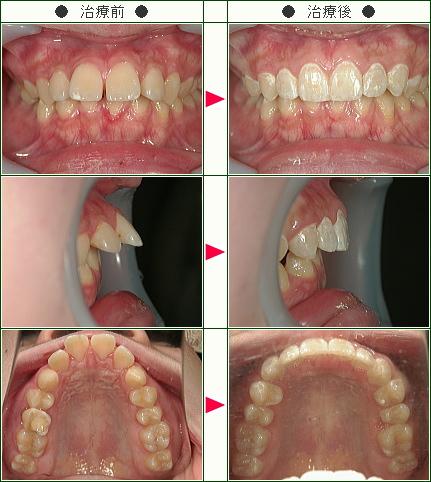 出っ歯矯正症例(M.S様 18歳 女性)
