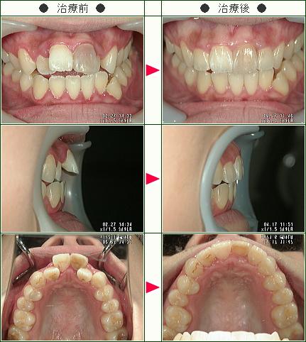 歯のデコボコ矯正症例(M.S様 22歳 女性)
