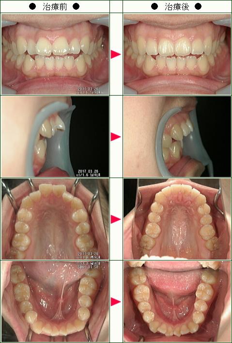 出っ歯矯正症例(M.S様 22歳 女性 )