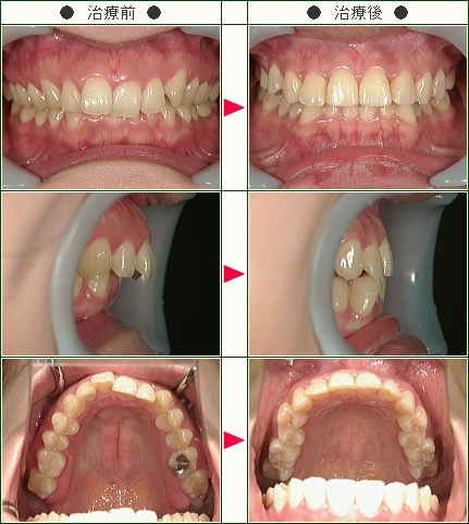 歯のデコボコ矯正症例(M.S様 31歳 女性)