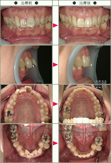 出っ歯矯正症例(M.S様 42歳 男性)