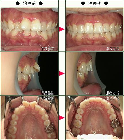 出っ歯矯正症例(M.T様 23歳 女性)
