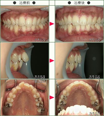歯のデコボコ矯正症例(M.T様 30歳 女性)