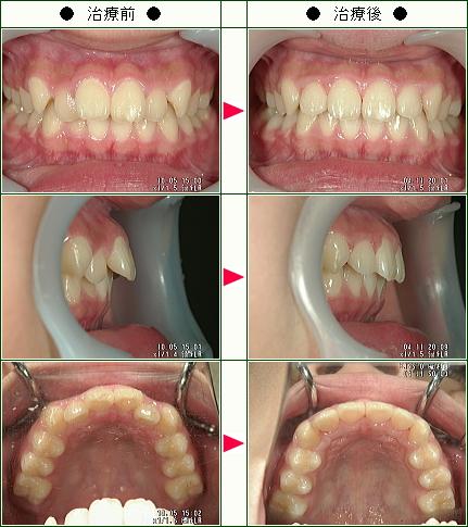 歯のデコボコ矯正症例(宗村様 11歳 女性)