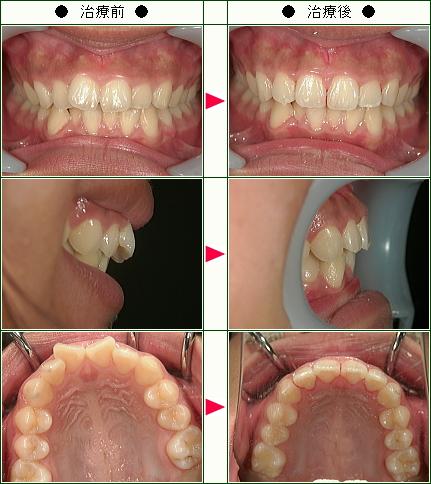 歯のデコボコ矯正症例(M・Y様 女性(母親))