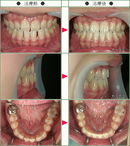 前歯のすきっ歯矯正症例(N様 23歳 女性)
