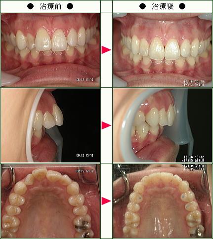 出っ歯矯正症例(n_n様 31歳 女性)