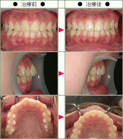 歯のデコボコ矯正症例(N.A様 14歳 女性)