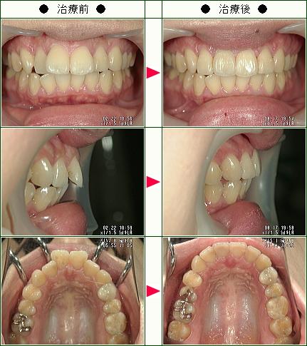 歯のデコボコ矯正症例(N・A様 27歳 女性)