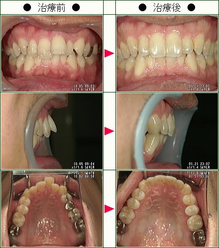 歯のデコボコ矯正症例(永井様 34歳 男性)