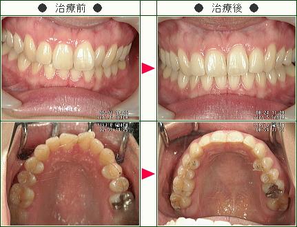 歯のデコボコ矯正症例(長嶋様 22歳 女性)