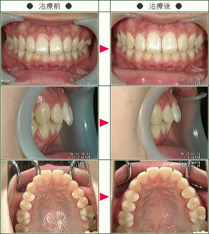 出っ歯矯正症例(中溝様 16歳 女性)