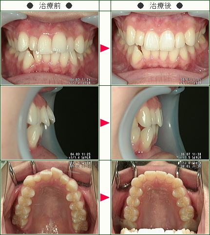 出っ歯矯正症例(中村様 19歳 女性)
