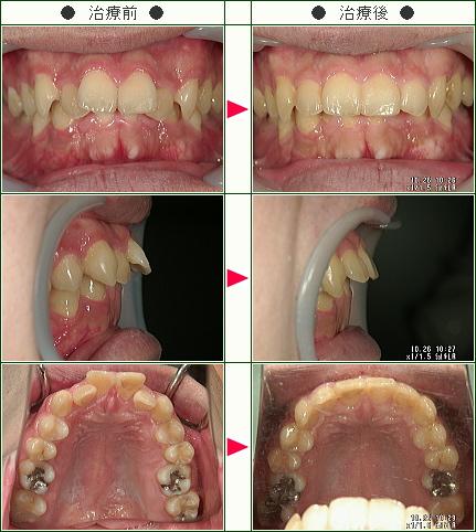 出っ歯矯正症例(ナカムラ様 26歳 男性)