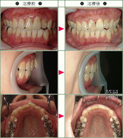 歯のデコボコ矯正症例(直子様 38歳 女性)