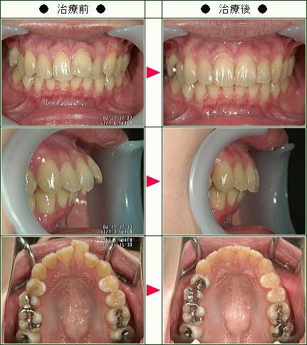 歯のデコボコ矯正症例(N・E様 27歳 女性)