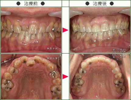 歯のデコボコ症例(ニトログリセリン様 44歳 男性)