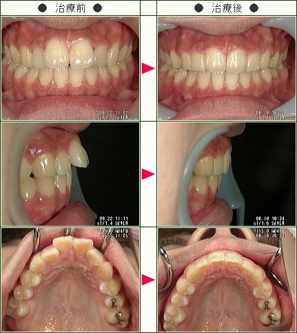 出っ歯矯正症例(N.K様 19歳 女性)