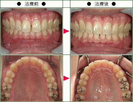 前歯のすきっ歯矯正症例(N.K様 31歳 男性)