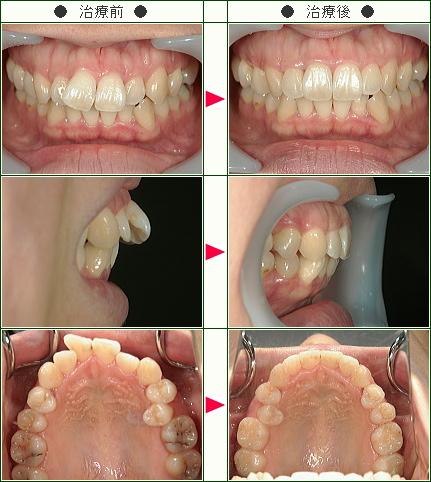 歯のデコボコ矯正症例(N・M様 27歳 女性)