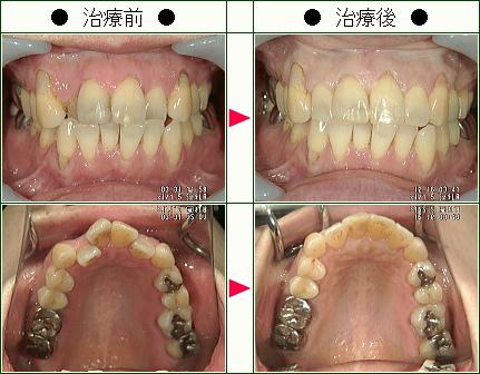 歯のデコボコ矯正症例(N.M様 50歳 女性)