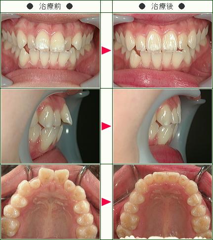 歯のデコボコ症例(N.O様 18歳 女性)