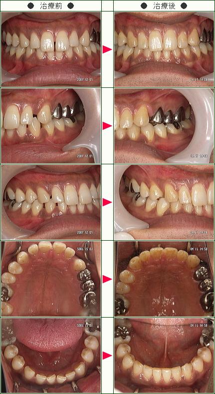 前歯のすきっ歯矯正症例(N.S.様 35歳 男性)