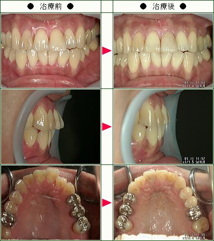 歯のデコボコ矯正症例(N.S様 36歳 女性)
