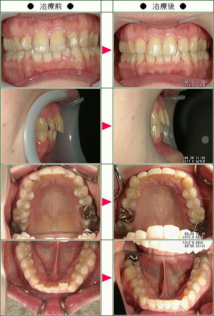 歯のデコボコ矯正症例(N.S様 38歳 女性)