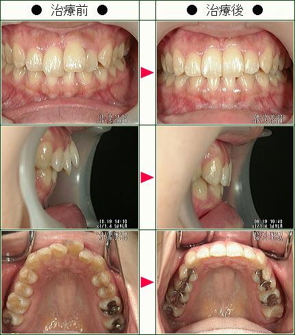 歯のデコボコ矯正症例(N・T様 27歳 女性)