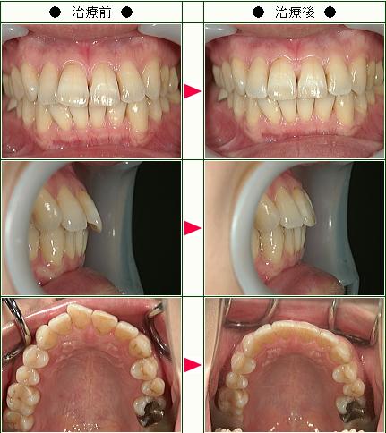出っ歯矯正症例(N・T様 38歳 女性)