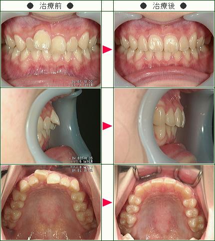 歯のデコボコ症例(N.U様 15歳の娘の母 女性)