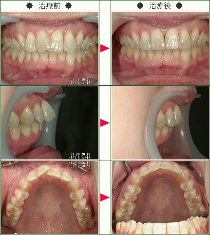 歯のデコボコ矯正症例(N・U様 42歳 女性)