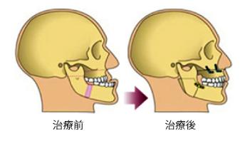 外科矯正のスケジュール